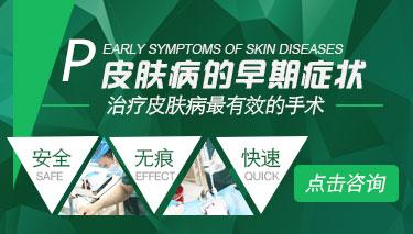灰指甲的初期症状是什么