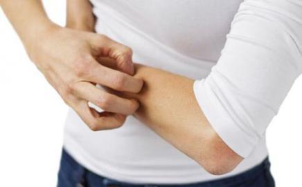 哪些原因会诱发成年人湿疹?