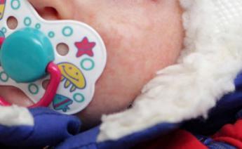 婴儿湿疹有哪些诱因?